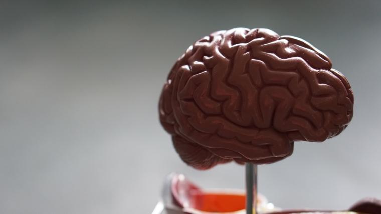 cerveau maladie d'Alzheimer plaque d'amyloïde